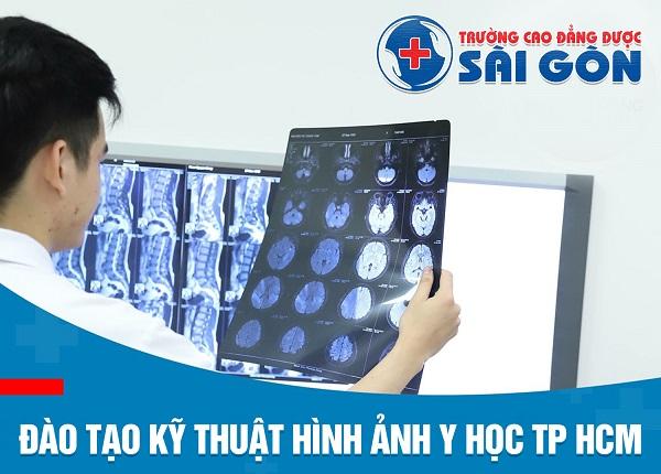 Trường cao đẳng dước sài gòn đào tạo kỹ thuật hình ảnh y học tphcm