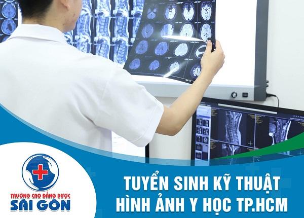 trường cao đẳng dược sài gòn tuyển sinh kỹ thuật hình ảnh y học tphcm
