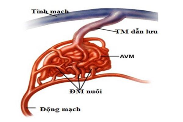 Nguyên nhân dị dạng động tĩnh mạch hiện chưa được rõ