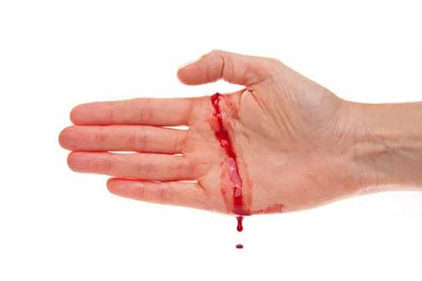 Chảy máu kéo dài sau chấn thương là triệu chứng của hemophilia