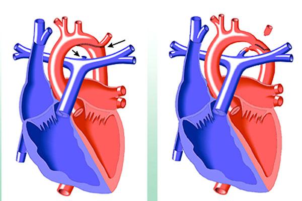 Khiếm khuyết tim bẩm sinh gây hẹp eo động mạch chủ