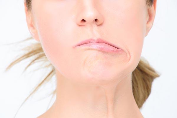 Biến chứng giật cơ mí mắt sẽ làm một bên mặt của bạn rũ xuống