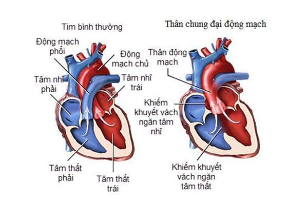 Tìm hiểu thận chung động mạch cùng giảng viên Cao đẳng Dược Sài Gòn