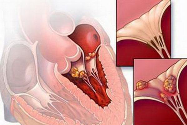 Viêm cơ tim hoặc viêm màng ngoài tim cấp tính có thể là nguyên nhân gây Block xoang nhĩ