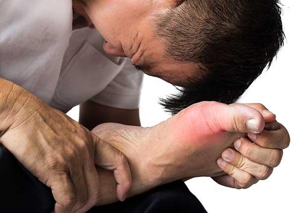 Bệnh gout cấp gây ảnh hưởng không nhỏ đến sinh hoạt của người bệnh