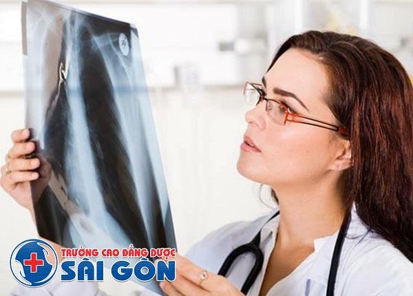 Điều trị kén khí phổi cùng chuyên gia Trường Cao Đẳng Dược Sài Gòn