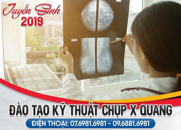 Tuyển sinh đào tạo kỹ thuật chụp X Quang 2019