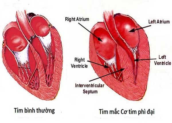 Bệnh cơ tim giãn nở thường xảy ra ở tâm thất trái
