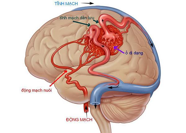 Dị dạng động tĩnh mạch là một rối loạn của mạch máu liên kết giữa động mạch và tĩnh mạch não