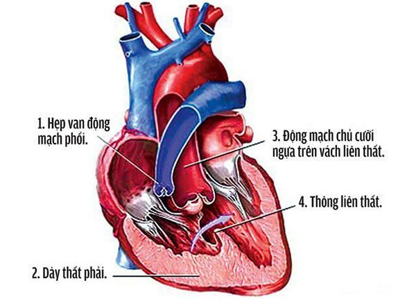 Thông liên thất là một bệnh tim bẩm sinh thường gặp