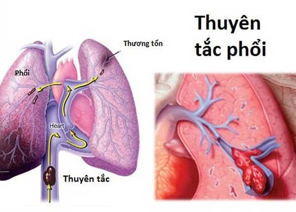 Bệnh thuyên tắc phổi có mức nguy hiểm cao chỉ sau nhồi máu cơ tim và đột quỵ