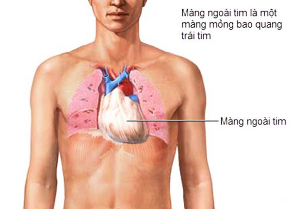 Viêm màng ngoài tim là tình trạng lớp màng bao quanh tim cấu tạo từ tế bào có hiện tượng bị kích thích và sưng phồng lên