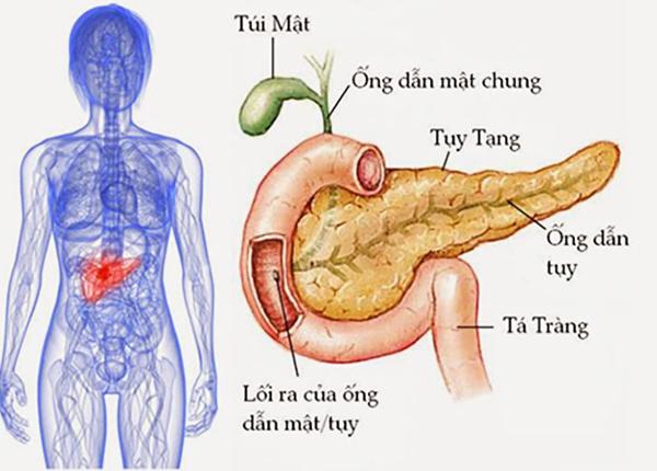 Bệnh viêm tụy dùng để chỉ tình trạng viêm của tụy