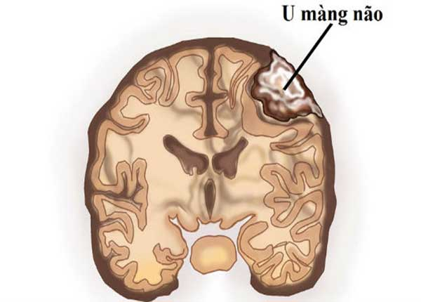 Phần lớn khối u màng não là lành tính
