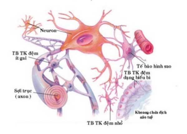 U tế bào thần kinh đệm là khối u xảy ra ở não và tủy sống