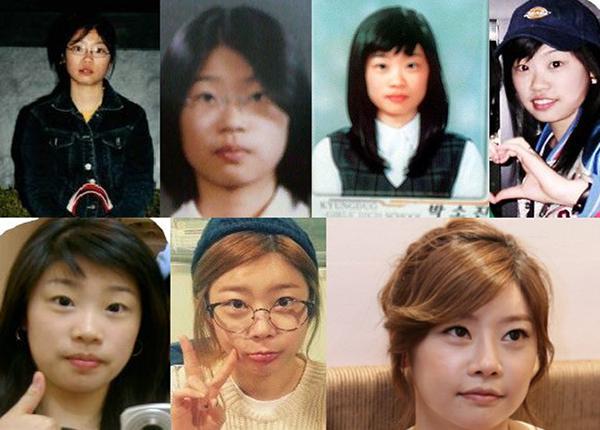 Trưởng nhóm Girl's Day bị nghi đụng chạm dao kéo ở mũi và mắt khi lộ những hình ảnh quá khứ