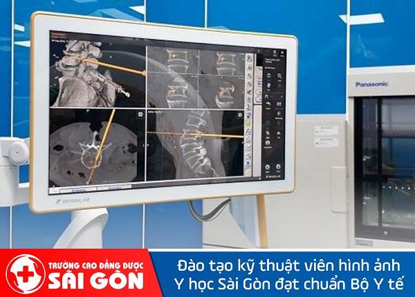 Tìm hiểu phương pháp điều trị dị dạng mạch máu tủy sống cùng với chuyên gia Dược Sài Gòn