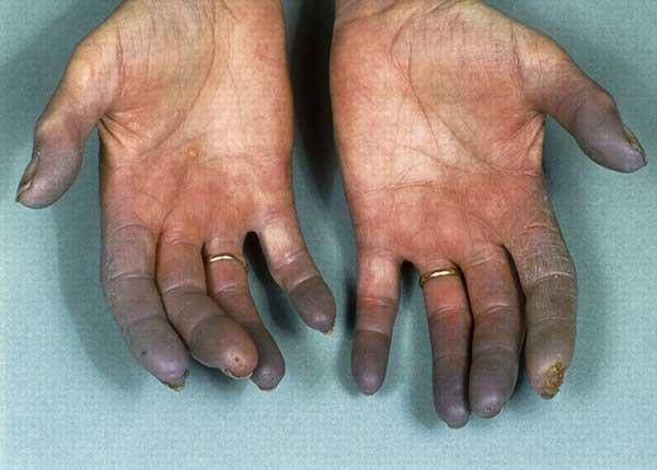 Bệnh Buerger hầu như chỉ xuất hiện ở những người hút thuốc nặng