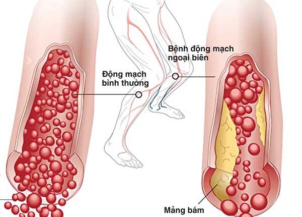 Bệnh động mạch ngoại biên thường gây ra bởi xơ vữa động mạch