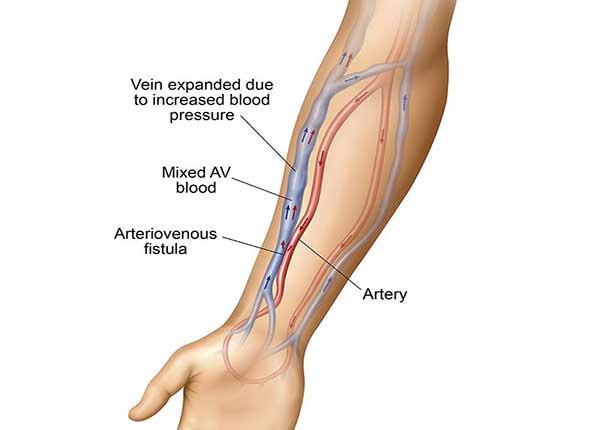 Các rò động tĩnh mạch có thể phát triển ở bất cứ đâu trong cơ thể