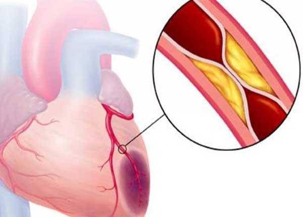 Hội chứng mạch vành cấp thường xuất phát từ sự tích tụ các lắng đọng mỡ
