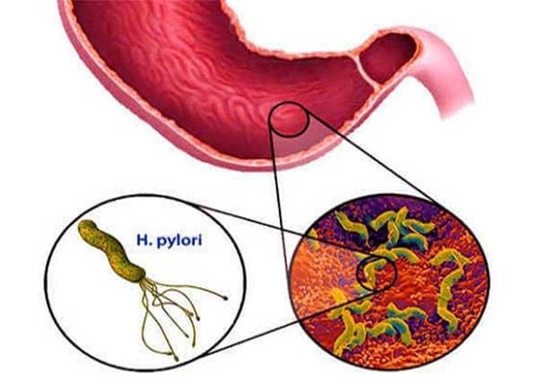 Nhiễm khuẩn HP không được chữa trị có thể gây ra ung thư dạ dày
