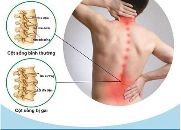 Bệnh gai cột sống có thể xuất hiện tại nhiều vị trí trên xương sống cơ thể
