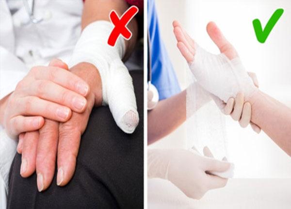 Sơ cứu vết thương khi bị gãy tay