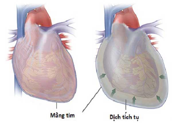Nguyên nhân là do các vi khuẩn gây mủ, đặc biệt là tụ cầu vàng và phế cầu xâm nhập khoang màng tim