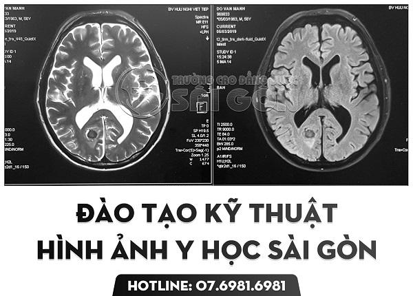 Trường Cao đẳng Dược Sài Gòn đào tạo Kỹ thuật hình ảnh Y học uy tín