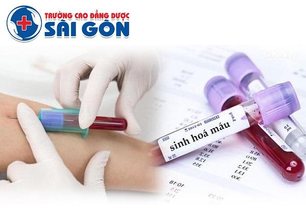 Điều trị bệnh tan máu tự miễn với chuyên gia Trường Dược Sài Gòn
