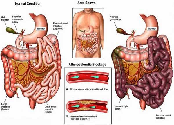 Nhồi máu mạc treo ruột có thể cấp tính hay mạn tính (ảnh minh họa)
