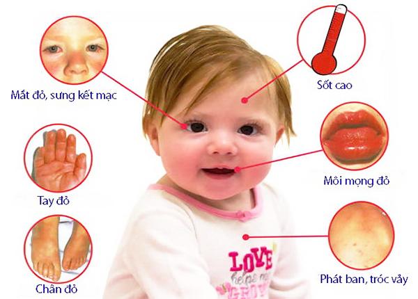 Bệnh thường xảy ra ở trẻ dưới 5 tuổi và gây di chứng trên mạch máu nuôi tim