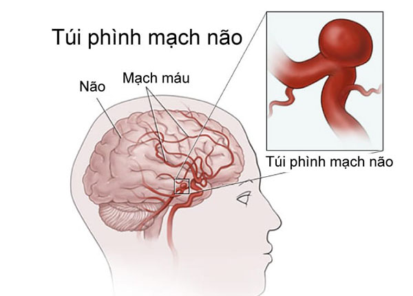 Phình mạch máu não là tình trạng các mạch máu não phình lên bất thường