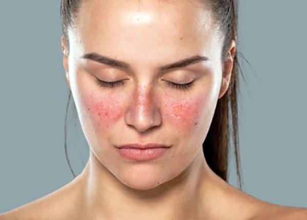 Lupus ban đỏ hệ thống gây tổn thương đến nhiều cơ quan cơ thể (ảnh sưu tầm)