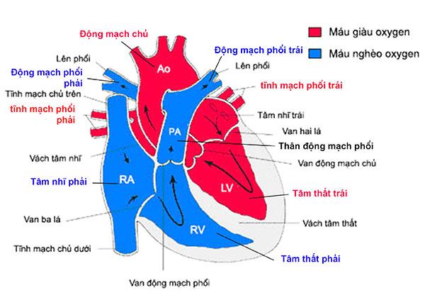 Chuyển vị đại động mạch là một bất thường tim bẩm sinh