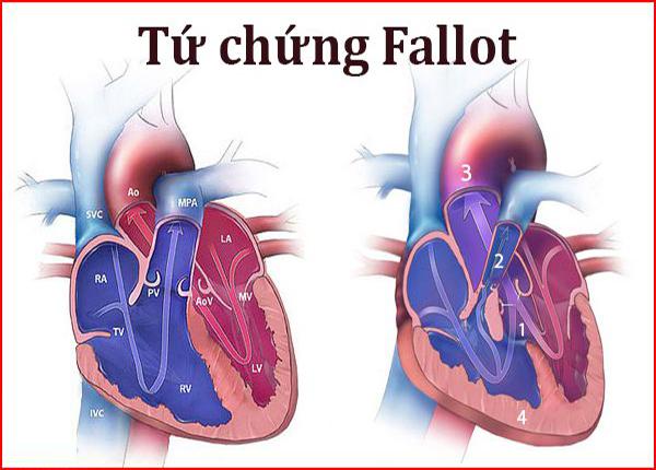 Tứ chứng Fallot là một trong những dị tật bẩm sinh phổ biến