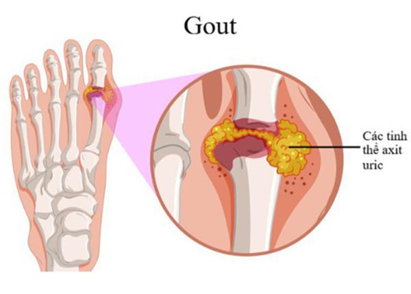 Bệnh gút là một bệnh gây rối loạn chuyển hoá