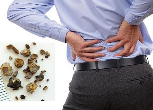 Có những thói quen xấu khiến cơ thể tạo sỏi ảnh hưởng đến sức khỏe của bạn