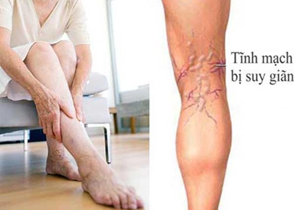Giãn tĩnh mạch bệnh xảy ra ở nữ nhiều hơn ở nam giới