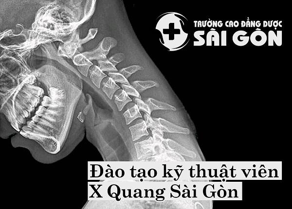 Đào tạo Kỹ thuật viên X Quang Sài Gòn uy tín chất lượng