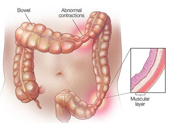 Viêm đại tràng co thắt là tình trạng rối loạn chức năng của đại tràng