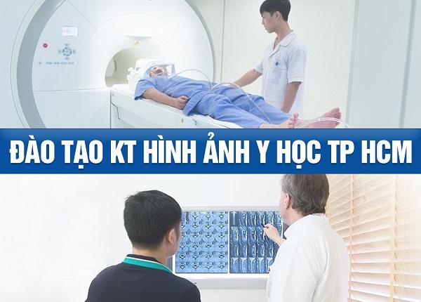 Trường Cao đẳng Dược Sài Gòn địa chỉ đào tạo kỹ thuật hình ảnh Y học Tp.HCM uy tín