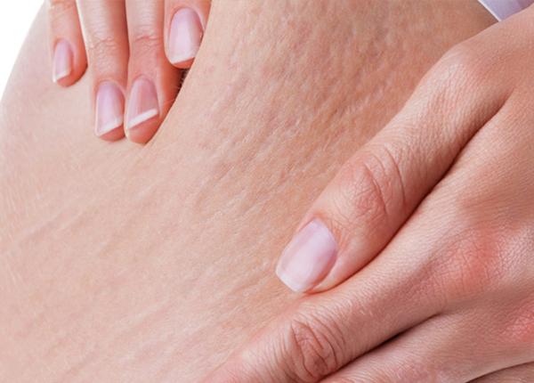Việc điều trị rạn da cần được tiến hành càng sớm càng tốt
