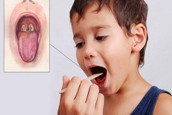 Nếu không chữa kịp thời bệnh bạch hầu gây ra nhiều biến chứng nguy hiểm