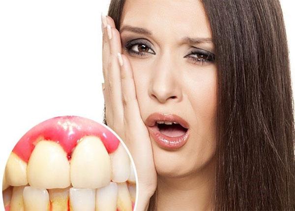 Chảy máu chân răng là do chưa vệ sinh răng đúng cách