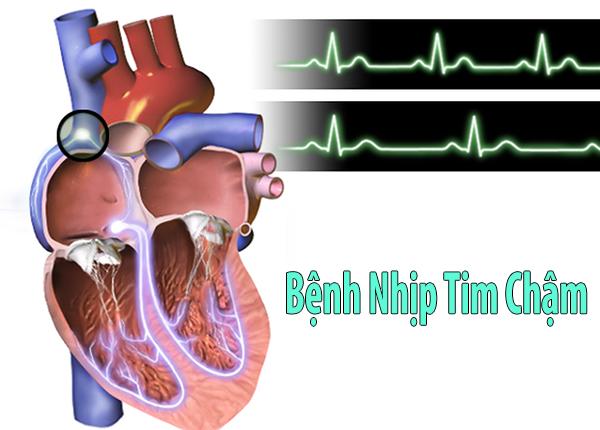 Bệnh nhịp tim chậm