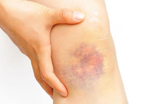 Những vết bầm tím không chỉ gây đau đớn mà còn mất thẩm mỹ