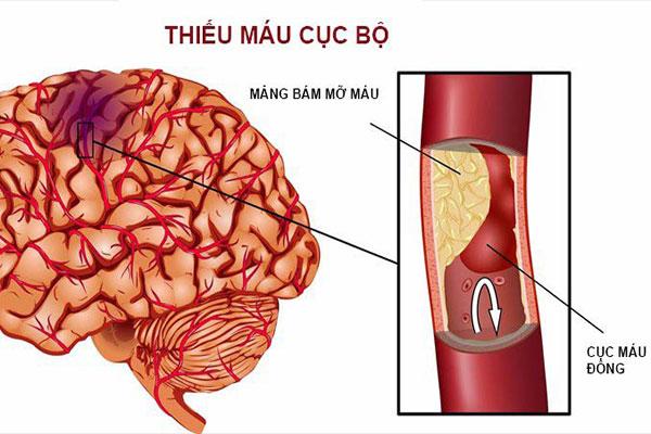 Thiếu máu não cục bộ có thể là dâu hiệu của cơ đột quỵ