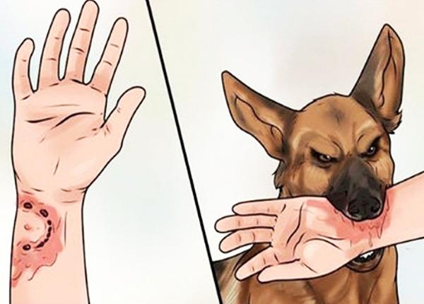 Bệnh dại do nhiễm virus dại từ động vật lây sang người